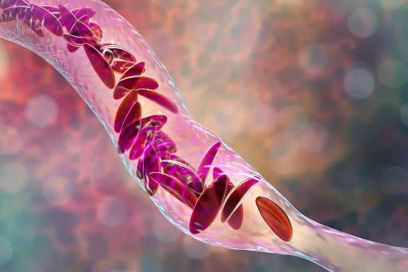 хемолитична анемия